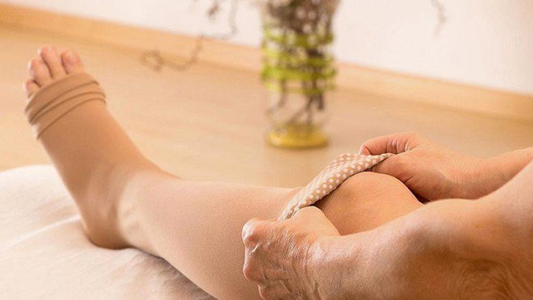 La calza elastica migliora il risultato della scleroterapia dei capillari