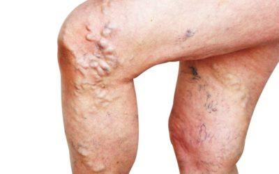 Trattamenti sclerosanti per le vene varicose: in cosa consistono?