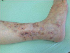 Tra le ulcere alle gambe possiamo riscontrare la vasculopatia livedoide