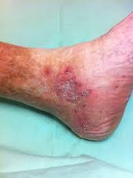 Le ulcere alle gambe possono essere causate da insufficienza venosa