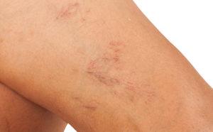 I capillari sulle gambe possono essere a forma di albero