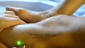 Il laser può eliminare i capillari sulle gambe inferiori a 1,5 mm