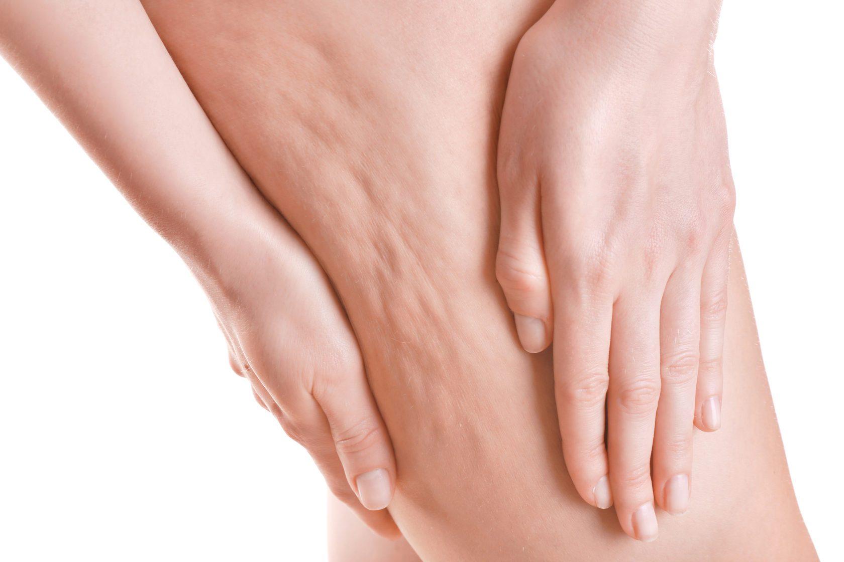 tra i rimedi per la cellulite la carbossiterapia ha un ruolo importante