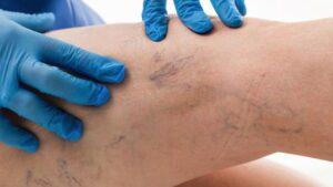 La scleroterapia dei capillari permette di migliorare l'aspetto delle gambe
